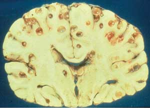 T. solium cysticerci in the brain of a nine-year-old girl who died during cerebrospinal fluid extraction to diagnose her headaches.