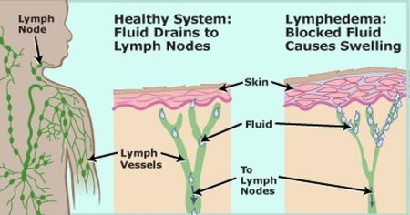 Detoxing The Lymphatic System