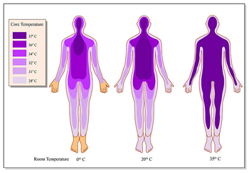 Hyperthermia with Far-Infrared for Cancer and Pain