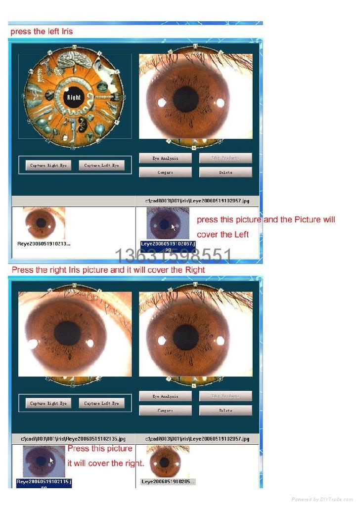 How To Read Iridology Eye Charts Heartpulsar