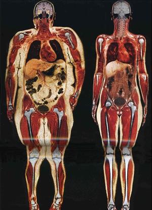 Santé bien être nutrition environnement / Health - Page 4 Fatperson3