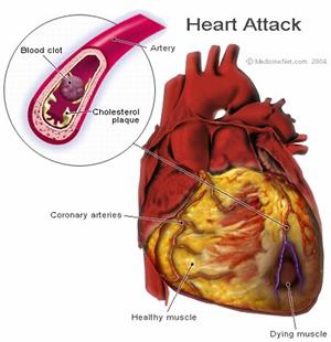 Silent heart attacks
