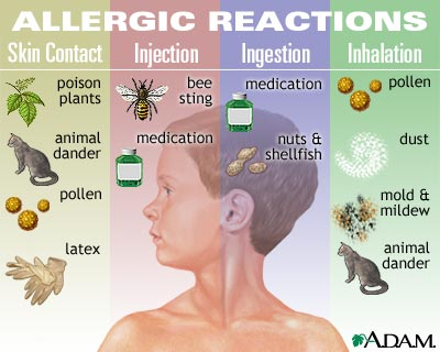 Are you suffering from allergies for Can you be allergic to fish