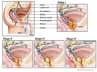Prostate Health Care