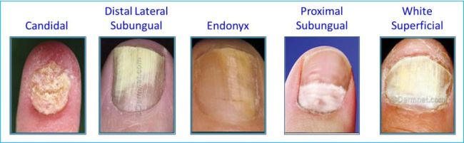 Nail Fungus, it\'s cause, it\'s cure.